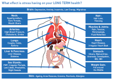 causes-of-stress-on-body